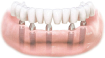 An Implant Supported Bridge Replacing All of the Teeth