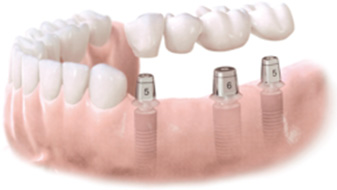 An Implant Supported Bridge Replacing Several Missing Teeth