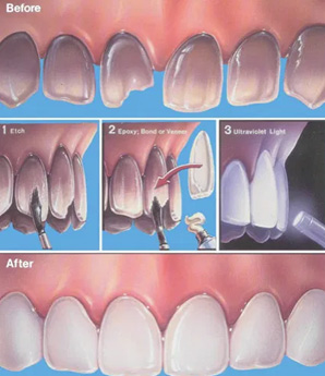 How are Porcelain Veneers Applied
