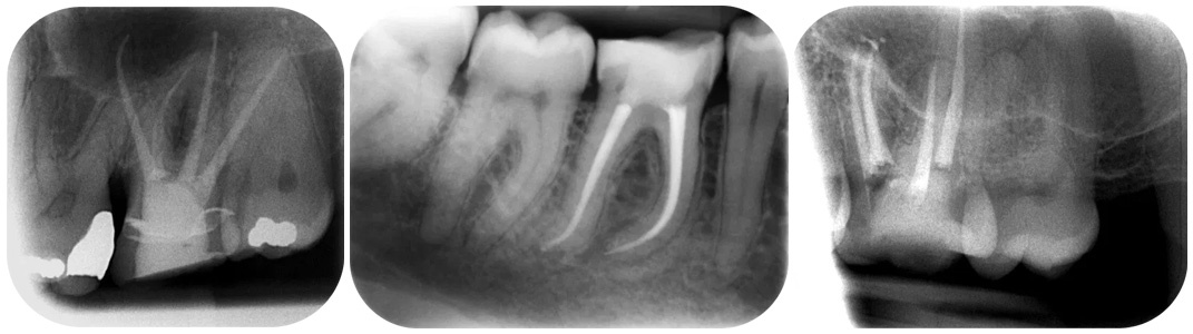 What is the success rate of root canal treatment?