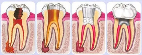 Why is root canal treatment needed?